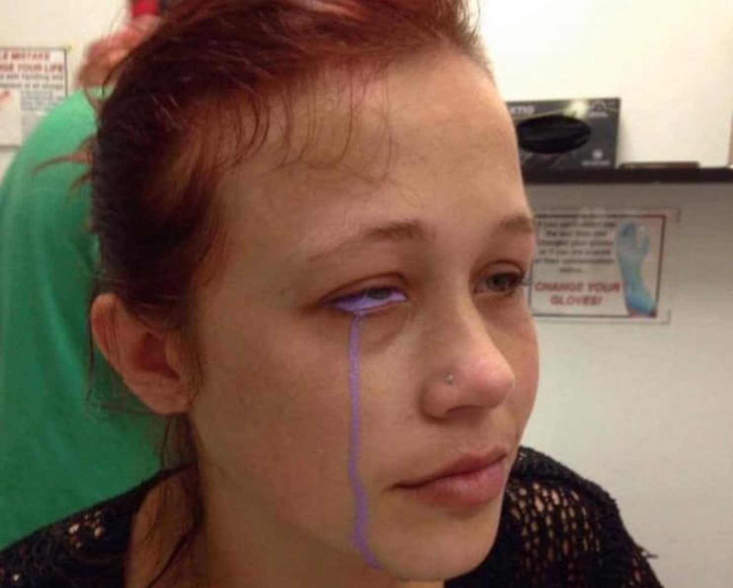 A Model Tattooed Her Eyeball Purple She Now Could Lose Her Eye The Washington Post