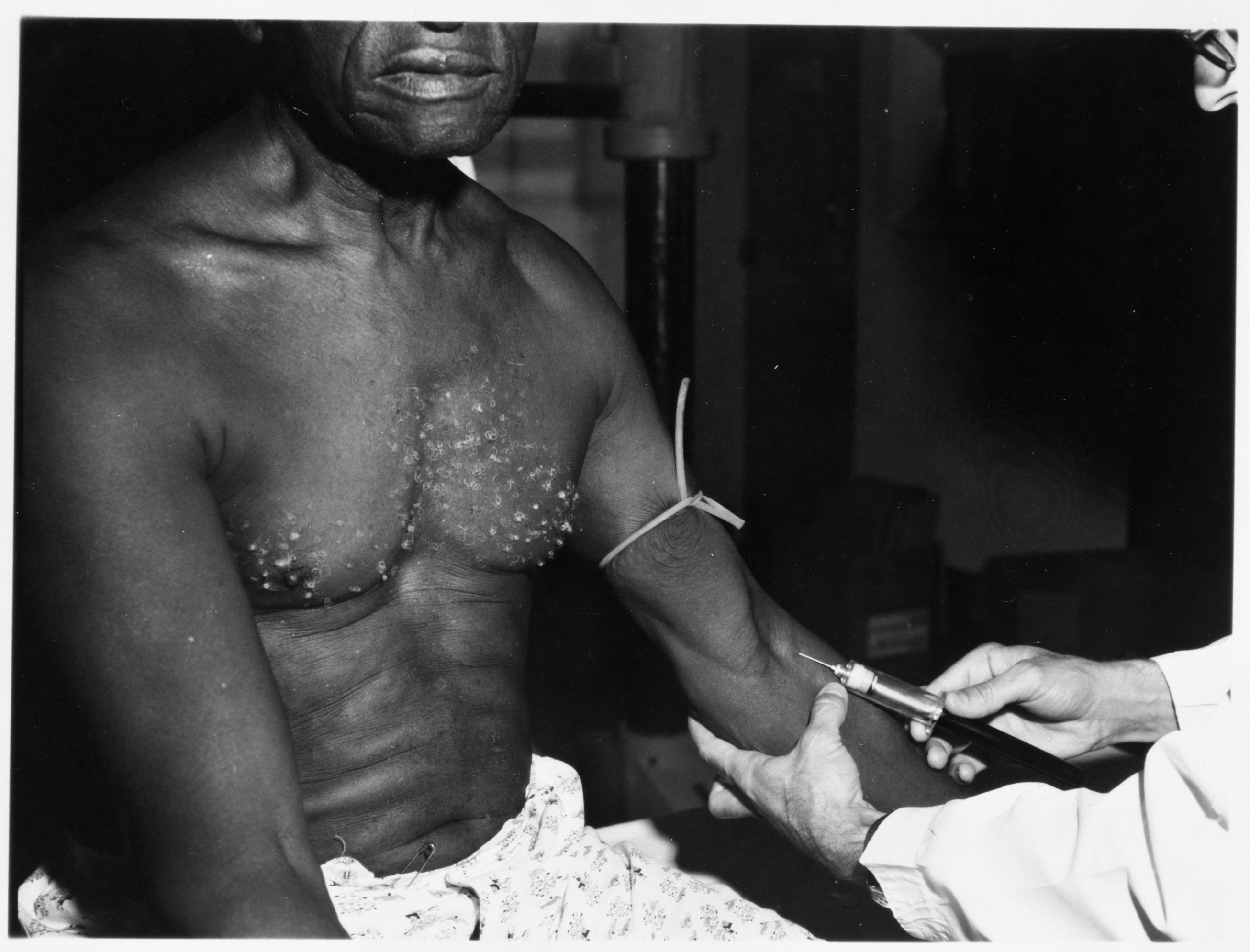 Bill Jenkins, epidemiologist who tried to end Tuskegee syphilis ...