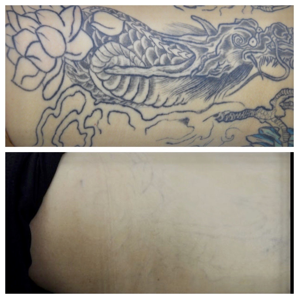 Tattoo Regret And Removal Can Be Expensive The Washington Post