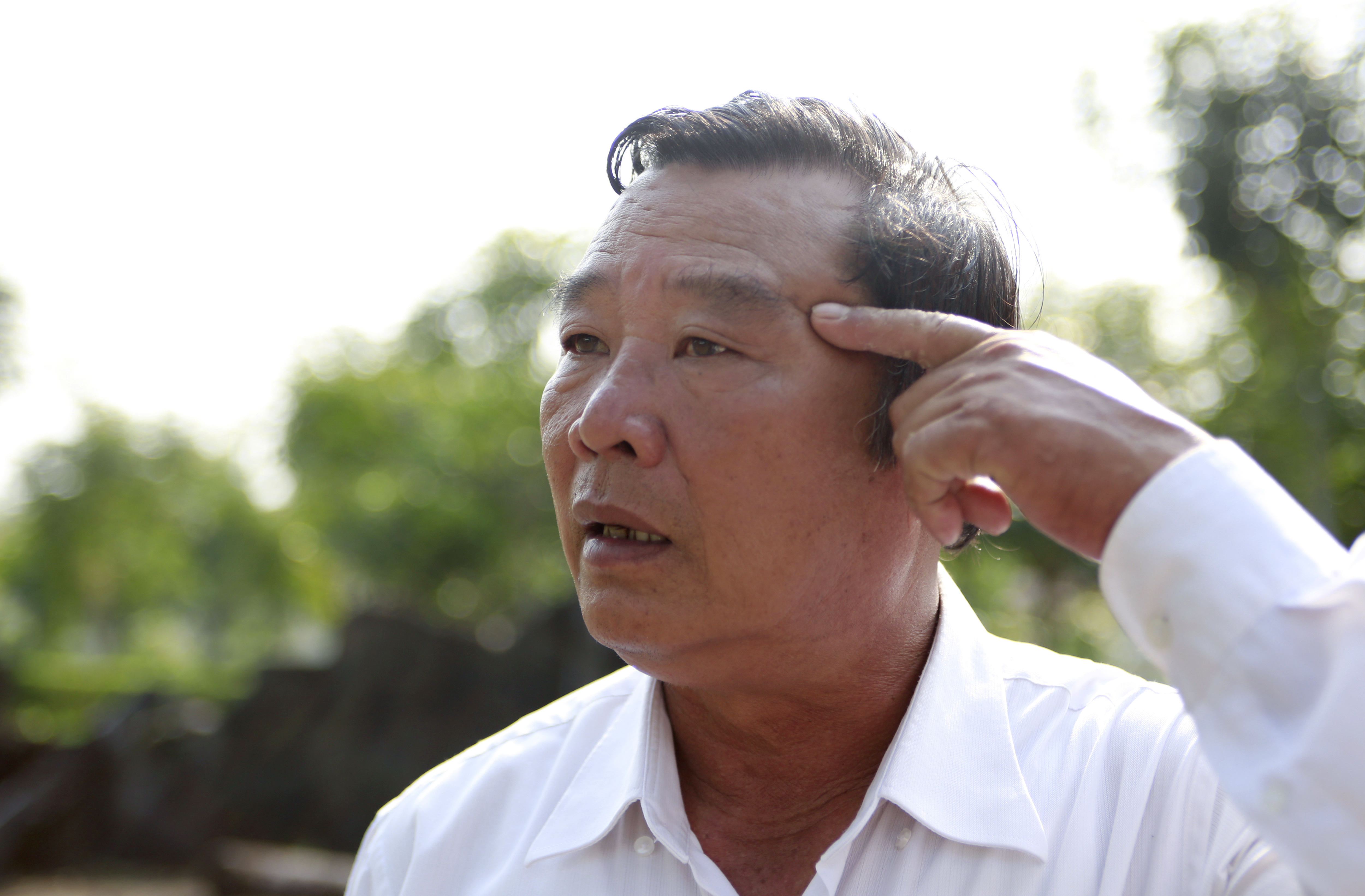 Pham Thanh Cong points in 2018 to a scar caused by shrapnel from a grenade during the My Lai massacre. His mother and his four siblings were killed.