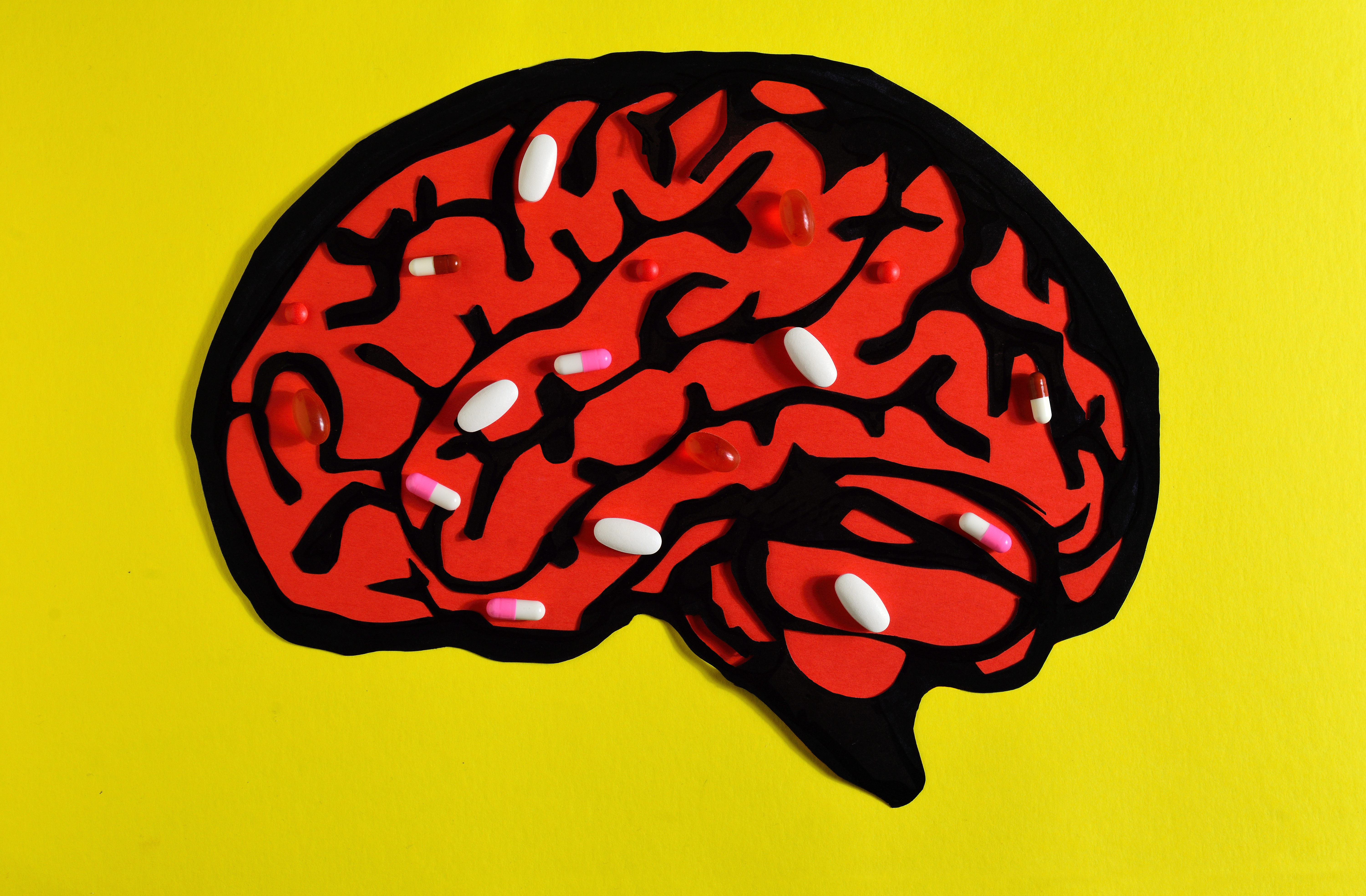 Study Links Dietary Supplement To Brain >> For Brain Health Skip The Supplements And Focus On A Healthy Diet