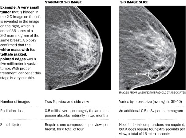 3 D Mammography Substantially Improves Screening For Breast Cancer New Study Shows The Washington Post