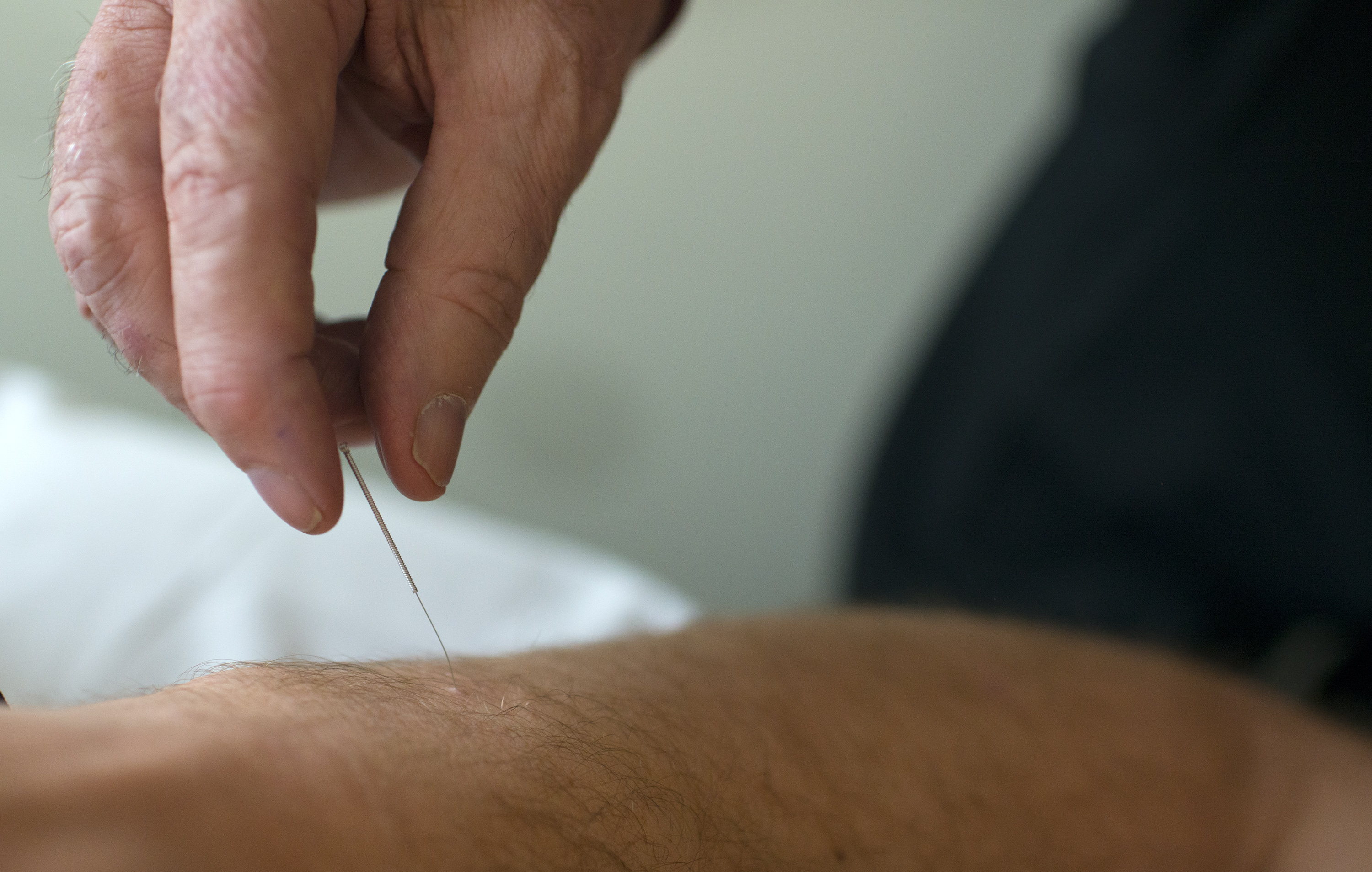 Medicare will pay for acupuncture that is part of low back pain research - The Washington Post