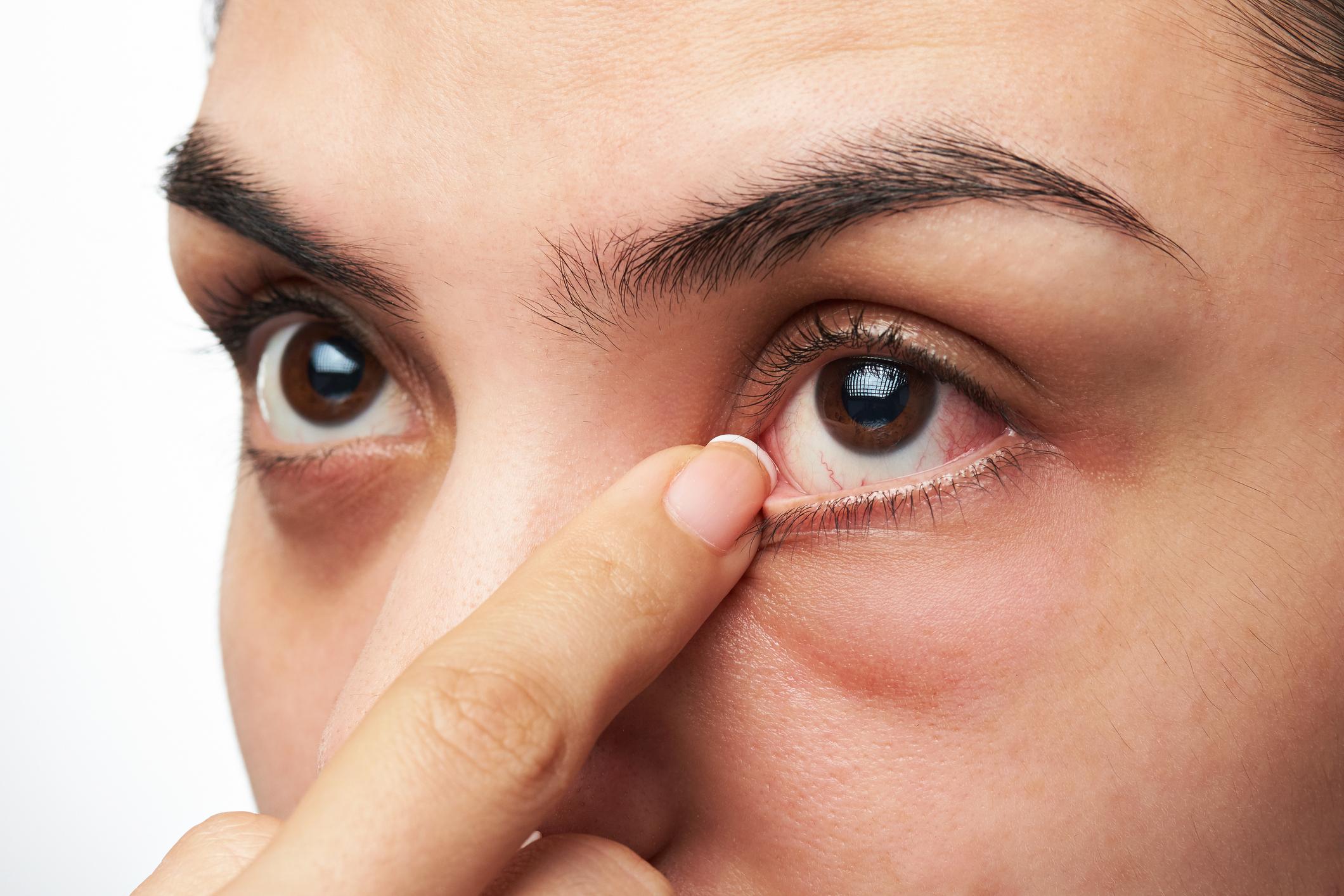 Coronavirus found in patient's eyes - The Washington Post