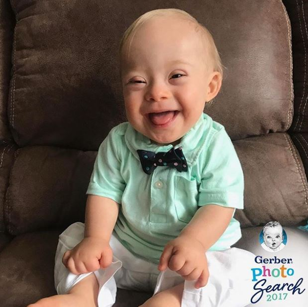 Baby with Down syndrome wins 2018 Gerber baby contest - The